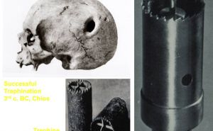 Trepanesetion-in-Ancient-Greece